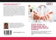 Buchcover von Cómo Evitar la Progresión de la Enfermedad Renal Crónica