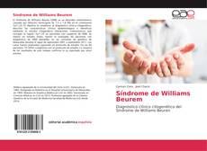 Bookcover of Síndrome de Williams Beurem