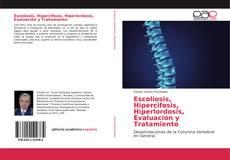 Borítókép a  Escoliosis, Hipercifosis, Hiperlordosis, Evaluación y Tratamiento - hoz