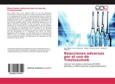 Bookcover of Reacciones adversas por el uso de Trastuzumab