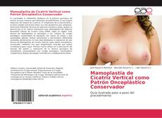 Bookcover of Mamoplastia de Cicatriz Vertical como Patrón Oncoplástico Conservador