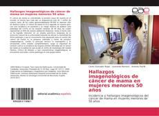 Bookcover of Hallazgos imagenológicos de cáncer de mama en mujeres menores 50 años