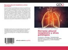 Couverture de Derrame pleural neoplásico y otras patologías