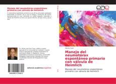 Portada del libro de Manejo del neumotórax espontáneo primario con válvula de Heimlich