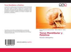 Bookcover of Torus Mandibular y Palatino