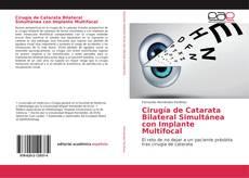 Portada del libro de Cirugía de Catarata Bilateral Simultánea con Implante Multifocal