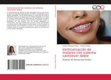 Buchcover von Verticalización de molares con sistema cantilever doble