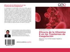 Bookcover of Eficacia de la Vitamina K en los Trastornos de Coagulación