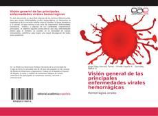 Buchcover von Visión general de las principales enfermedades virales hemorrágicas