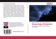 Buchcover von Hemorragia Postparto