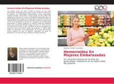 Bookcover of Hemorroides En Mujeres Embarazadas