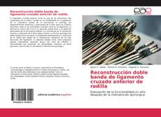 Bookcover of Reconstrucción doble banda de ligamento cruzado anterior de rodilla