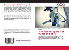 Buchcover von Tumores malignos del hueso temporal