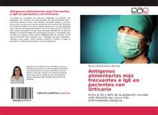 Обложка Antígenos alimentarios más frecuentes e IgE en pacientes con Urticaria
