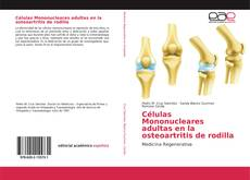 Buchcover von Células Mononucleares adultas en la osteoartritis de rodilla