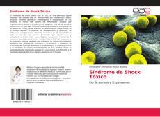 Bookcover of Síndrome de Shock Tóxico