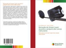 Buchcover von Remoção da Smear Layer durante o preparo dos canais radiculares