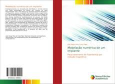 Bookcover of Modelação numérica de um implante