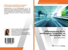 Bookcover of Differenzierung BLPS-zervikogener Schwindel im Dix Hallpike Test