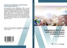Bookcover of Zytoplasma-ANCA bei systemischem Lupus Erythematosus: