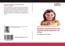 Couverture de Análisis morfometrico del frenillo labial superior en niños