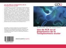 Uso de PCR en el diagnóstico de la Toxoplasmosis ocular的封面