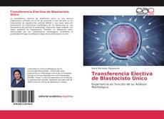 Bookcover of Transferencia Electiva de Blastocisto Único