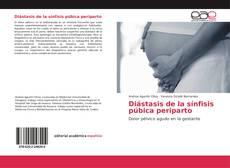 Обложка Diástasis de la sínfisis púbica periparto