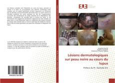 Couverture de Lésions dermatologiques sur peau noire au cours du lupus