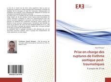 Buchcover von Prise en charge des ruptures de l'isthme aortique post-traumatiques