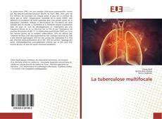 Обложка La tuberculose multifocale