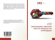 Bookcover of Actinomycètes: alternatifs face à la résistance aux antifongiques