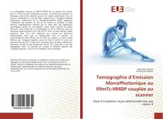 Tomographie d'Emission MonoPhotonique au 99mTc-HMDP couplée au scanner的封面