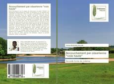 """Bookcover of Accouchement par césarienne """"voie haute"""""""