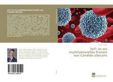 Bookcover of Tef1 ist ein multifaktorielles Protein von Candida albicans