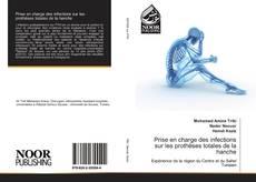 Buchcover von Prise en charge des infections sur les prothèses totales de la hanche
