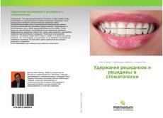 Bookcover of Удержание рецидивов и рецидивы в стоматологии