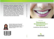 Bookcover of Невидимые выравниватели в ортодонтии