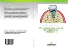 Bookcover of Регенерация костей под руководством наставника