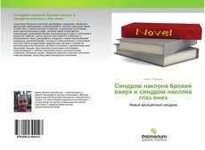Bookcover of Синдром наклона бровей вверх и синдром наклона глаз вниз