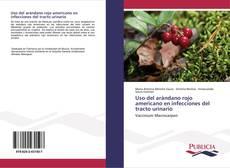 Bookcover of Uso del arándano rojo americano en infecciones del tracto urinario