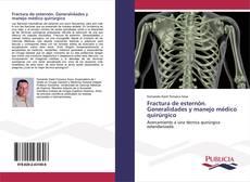 Buchcover von Fractura de esternón. Generalidades y manejo médico quirúrgico