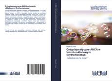 Bookcover of Cytoplazmatyczne-ANCA w toczniu układowym Erythematosus: