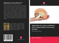 Bookcover of Agenesia do corpus callosum com colpocefalia: Uma nova terapia