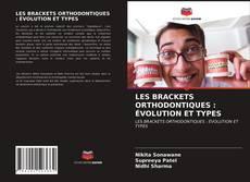 Bookcover of LES BRACKETS ORTHODONTIQUES : ÉVOLUTION ET TYPES