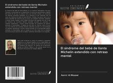 Bookcover of El síndrome del bebé de llanta Michelin extendido con retraso mental