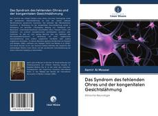 Buchcover von Das Syndrom des fehlenden Ohres und der kongenitalen Gesichtslähmung
