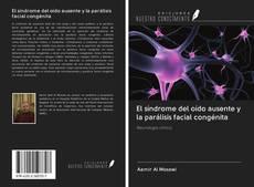 Bookcover of El síndrome del oído ausente y la parálisis facial congénita