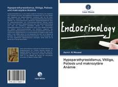 Buchcover von Hypoparathyreoidismus, Vitiligo, Poliosis und makrozytäre Anämie