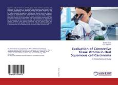 Bookcover of Evaluation of Connective tissue stroma in Oral Squamous cell Carcinoma
